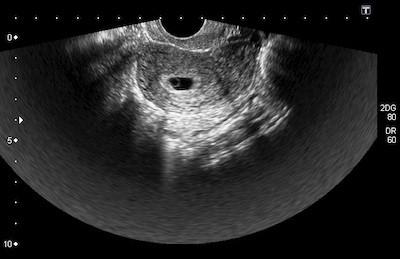 6 неделя беременности: особенности, выделения, узи на шестой неделе